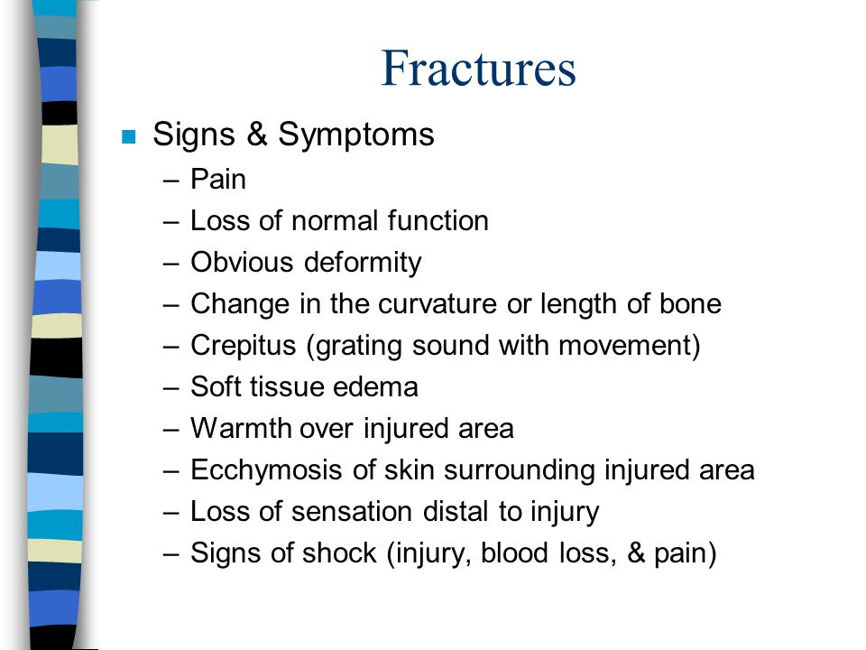 Fractures Signs & Symptoms Pain Loss of normal function