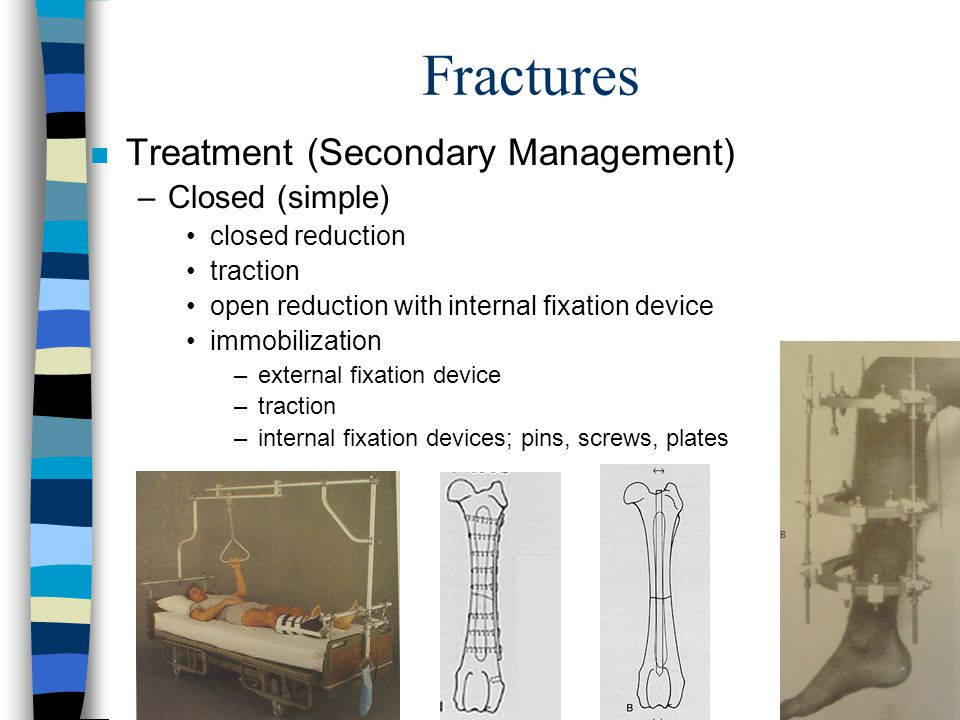 Fractures Treatment (Secondary Management) Closed (simple)