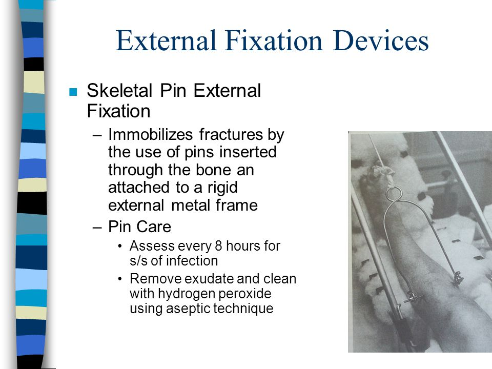 External Fixation Devices