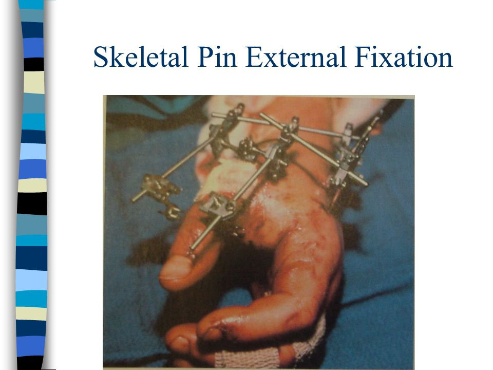 Skeletal Pin External Fixation