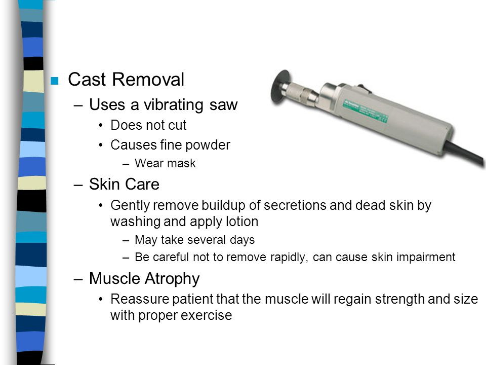 Cast Removal Uses a vibrating saw Skin Care Muscle Atrophy