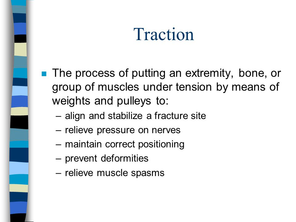 Traction The process of putting an extremity, bone, or group of muscles under tension by means of weights and pulleys to: