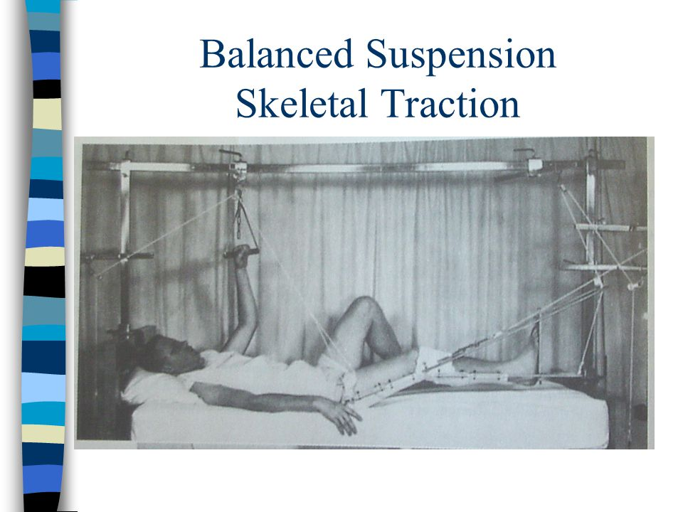 Balanced Suspension Skeletal Traction