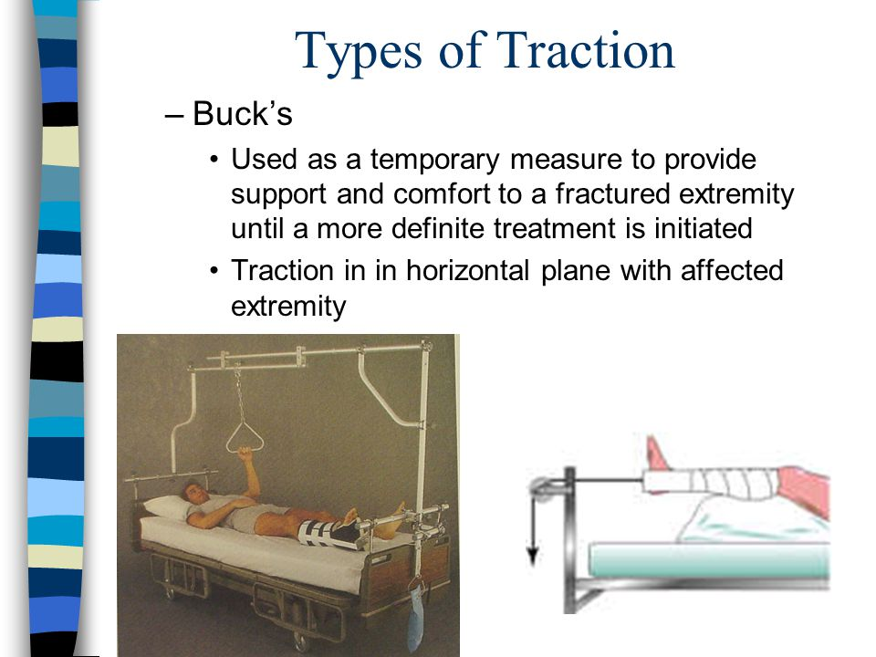 Types of Traction Buck's