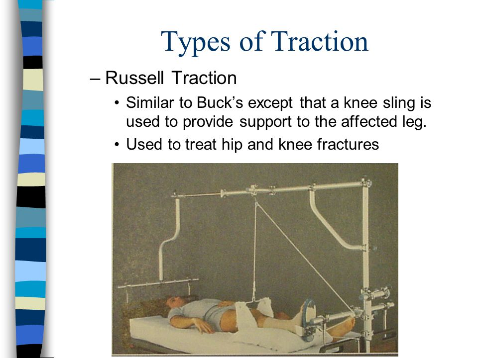 Types of Traction Russell Traction