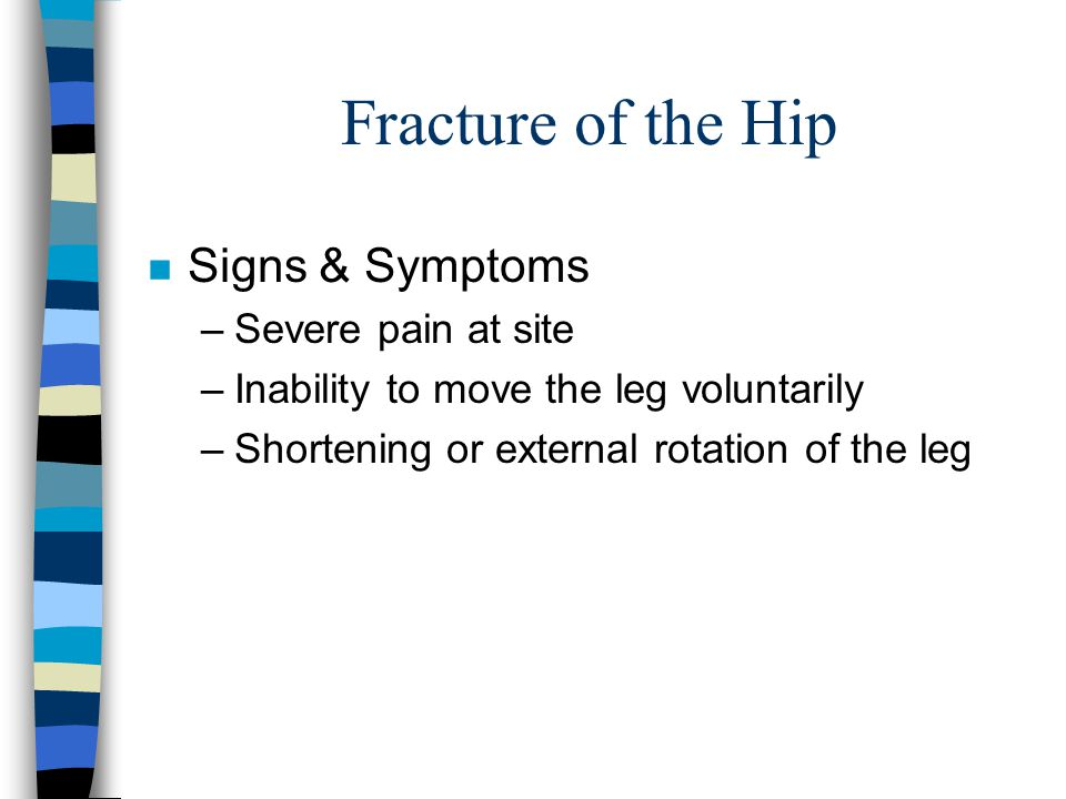 Fracture of the Hip Signs & Symptoms Severe pain at site