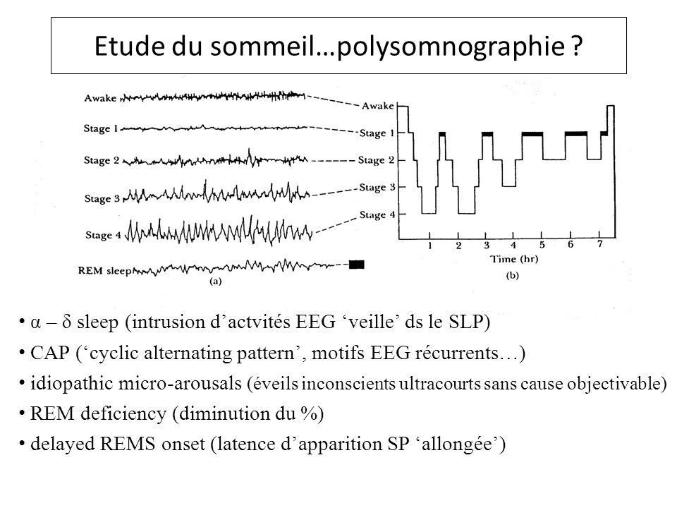 Etude du sommeil…polysomnographie
