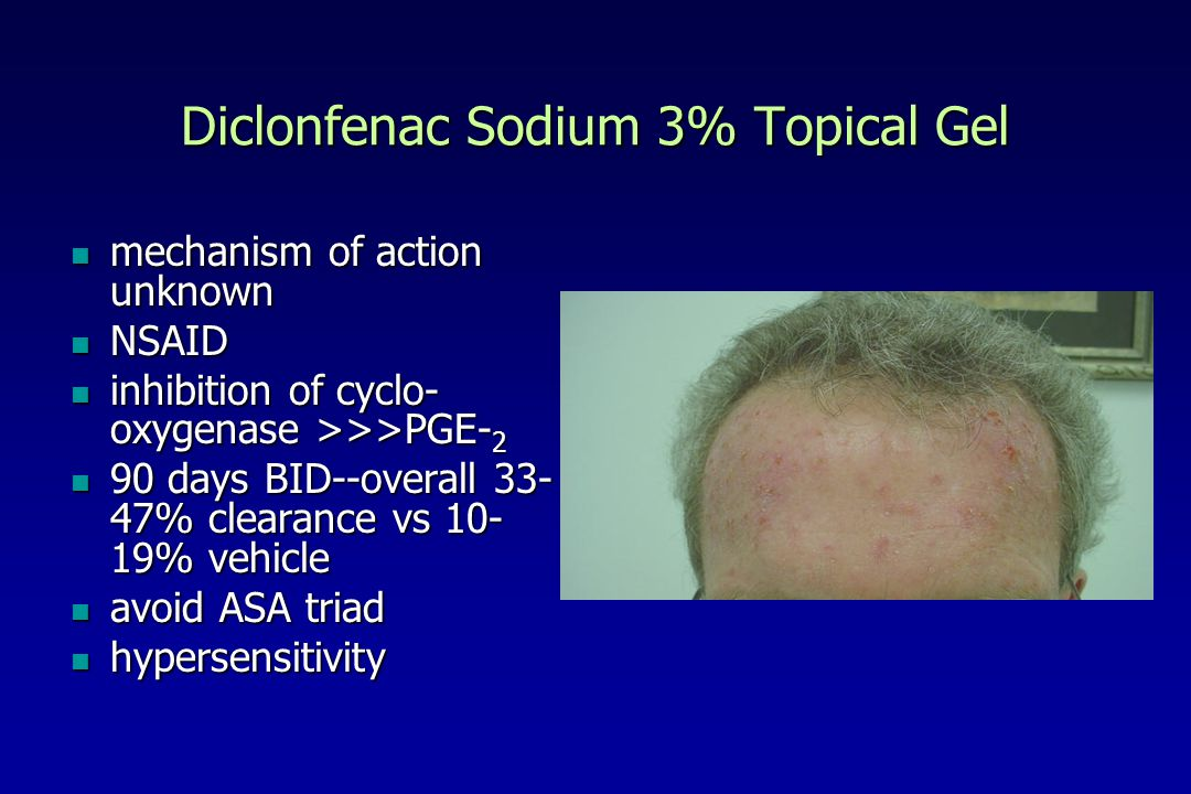 Diclonfenac Sodium 3% Topical Gel