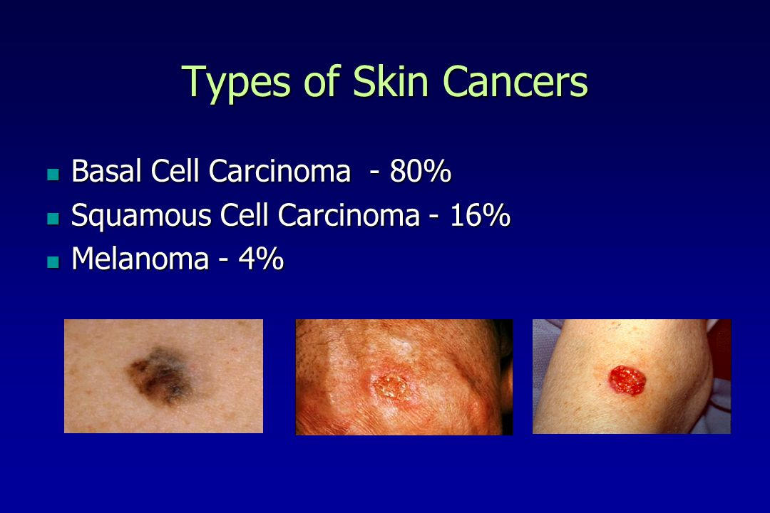 Types of Skin Cancers Basal Cell Carcinoma - 80%