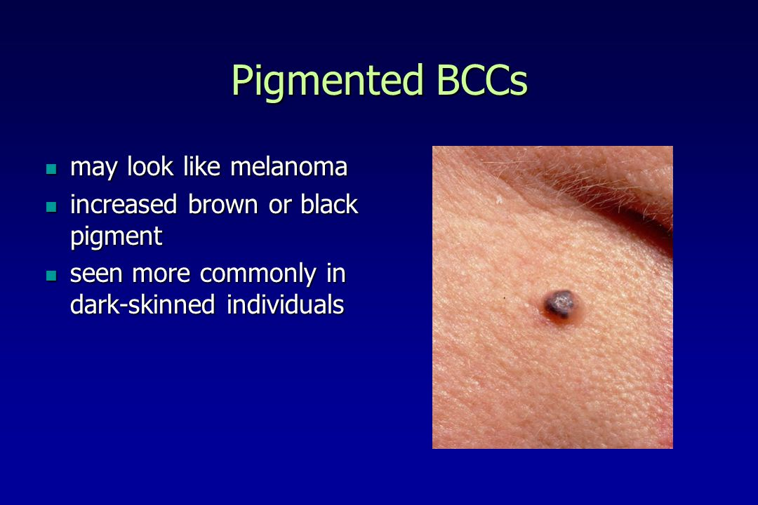 Pigmented BCCs may look like melanoma increased brown or black pigment