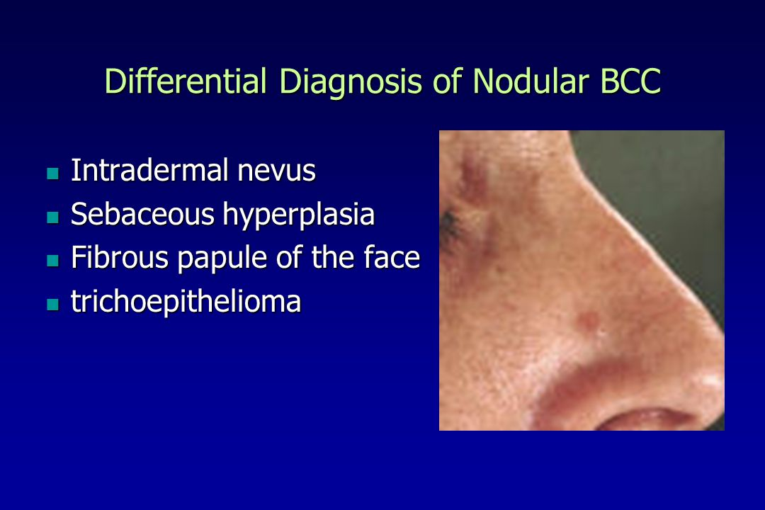 Differential Diagnosis of Nodular BCC
