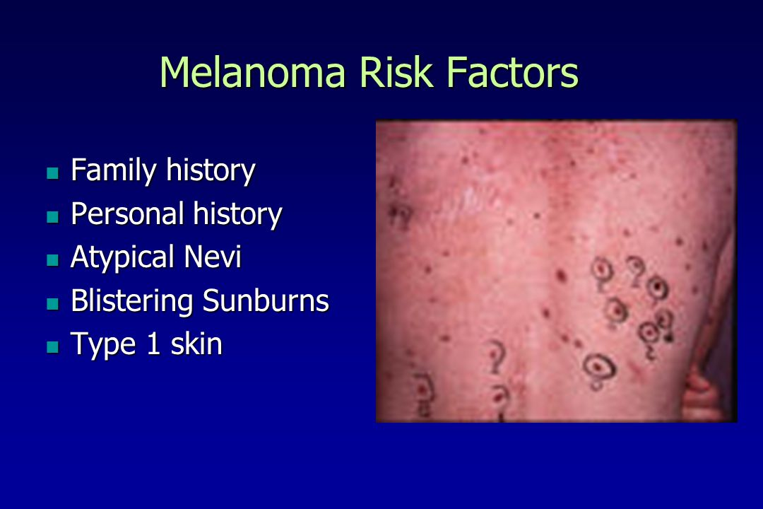 Melanoma Risk Factors Family history Personal history Atypical Nevi