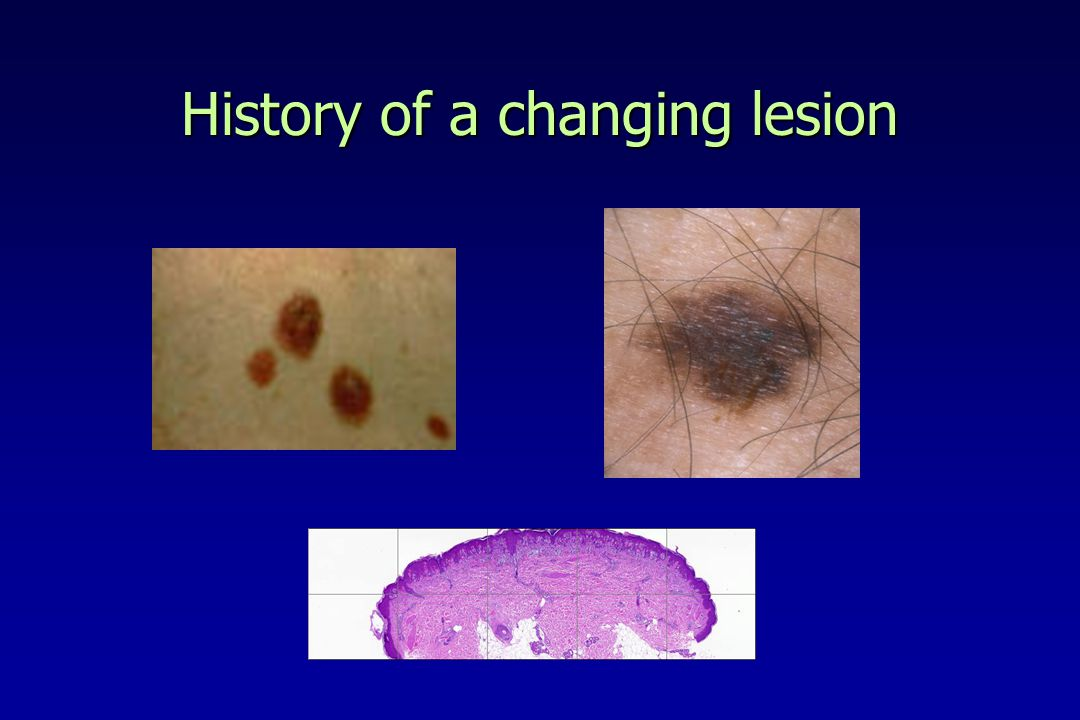 History of a changing lesion