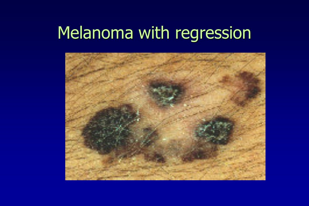 Melanoma with regression