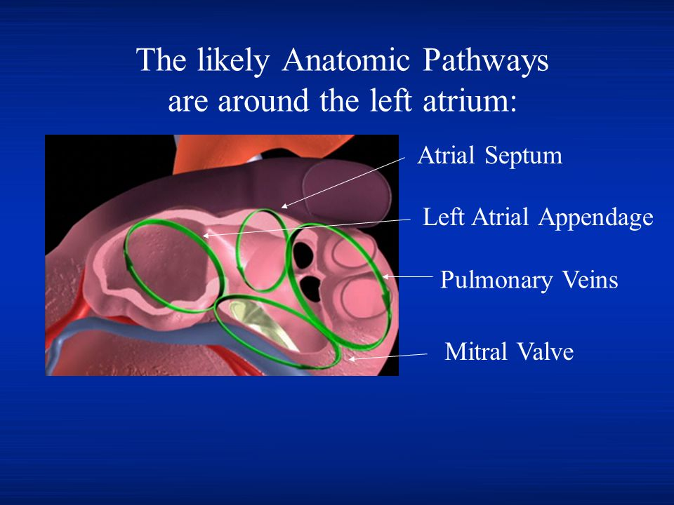 The likely Anatomic Pathways are around the left atrium: