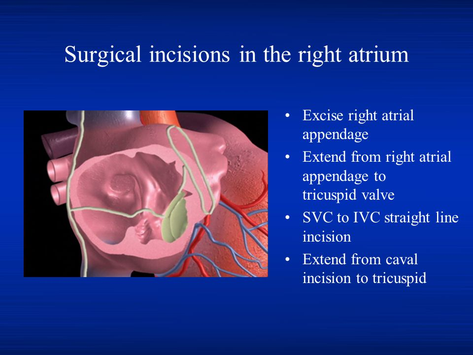 Surgical incisions in the right atrium