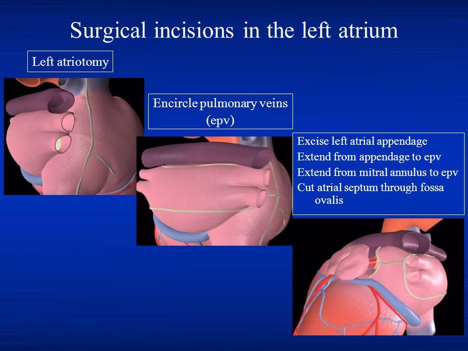Surgical incisions in the left atrium