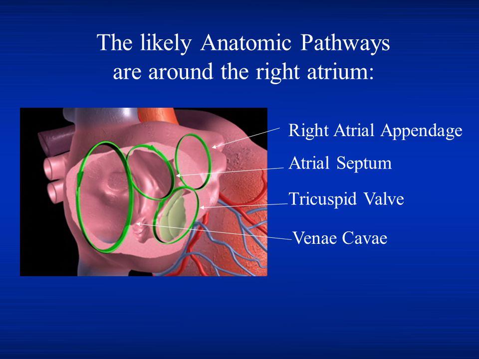 The likely Anatomic Pathways are around the right atrium: