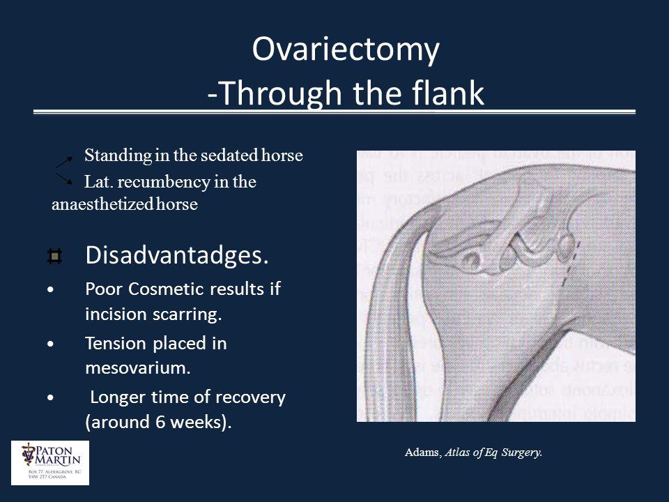 Ovariectomy -Through the flank