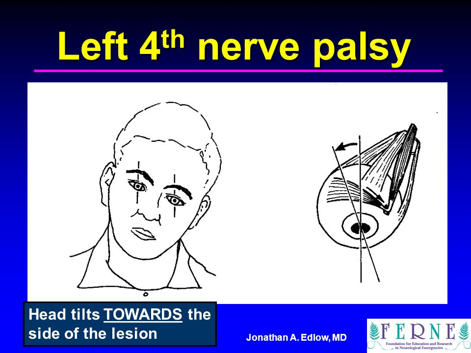 Left 4th nerve palsy Head tilts TOWARDS the side of the lesion