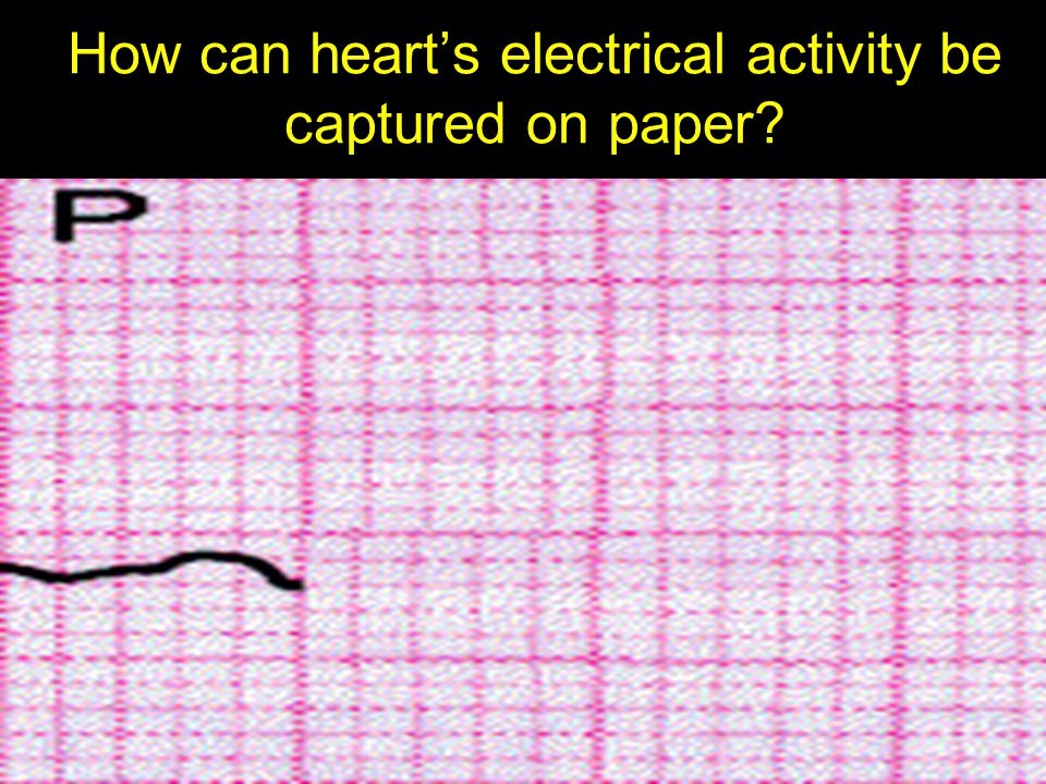 How can heart's electrical activity be captured on paper