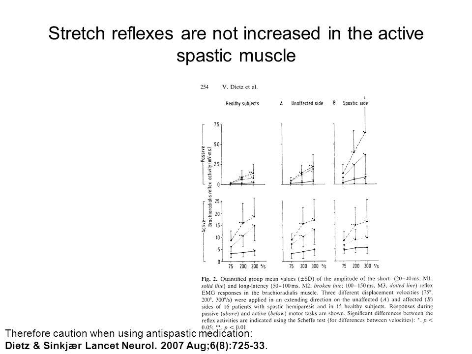 Stretch reflexes are not increased in the active spastic muscle
