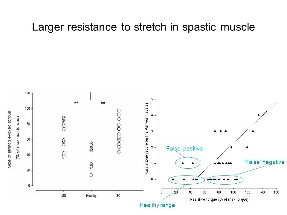 Larger resistance to stretch in spastic muscle