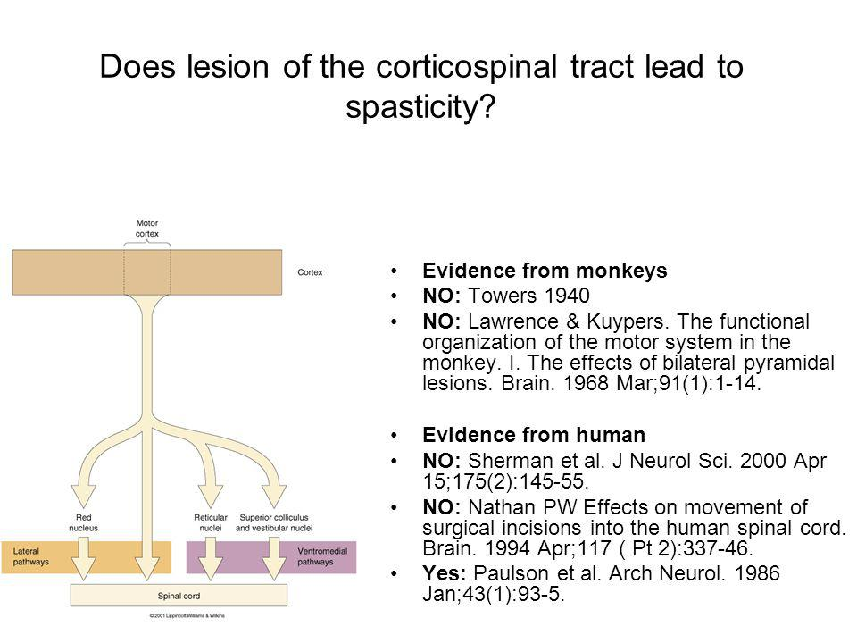 Does lesion of the corticospinal tract lead to spasticity