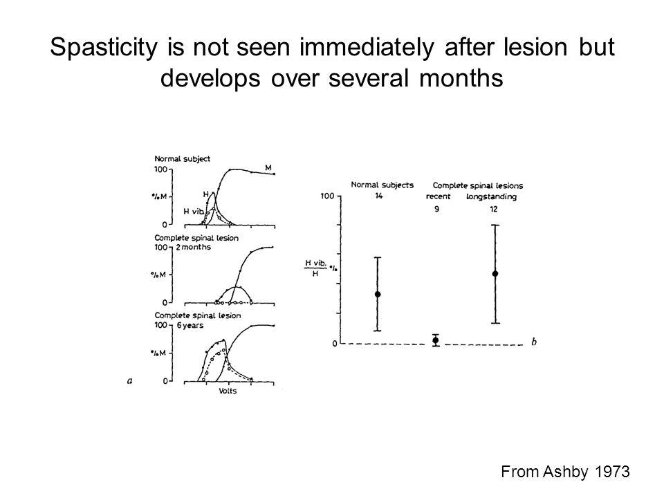 Spasticity is not seen immediately after lesion but develops over several months