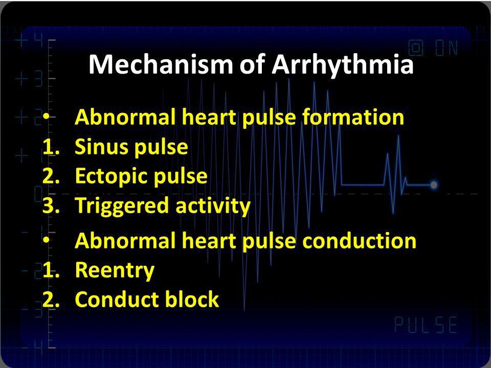 Mechanism of Arrhythmia