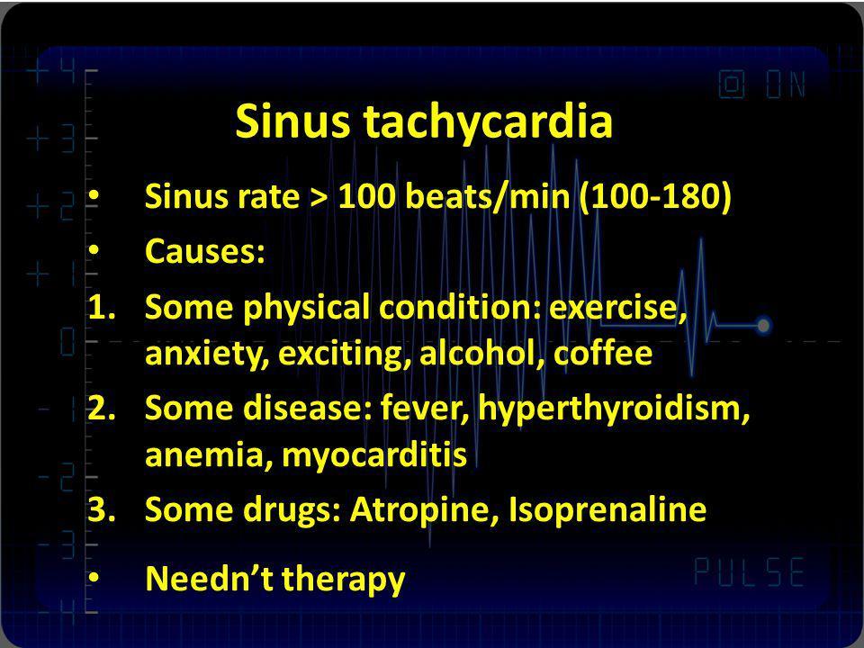 Sinus tachycardia Sinus rate > 100 beats/min (100-180) Causes: