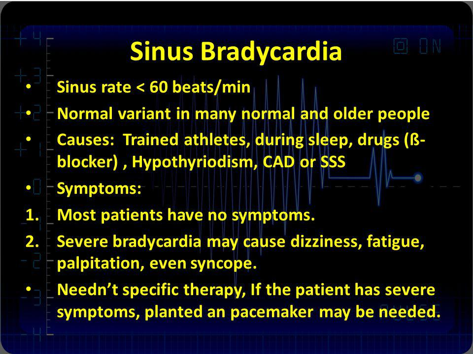 Sinus Bradycardia Sinus rate < 60 beats/min
