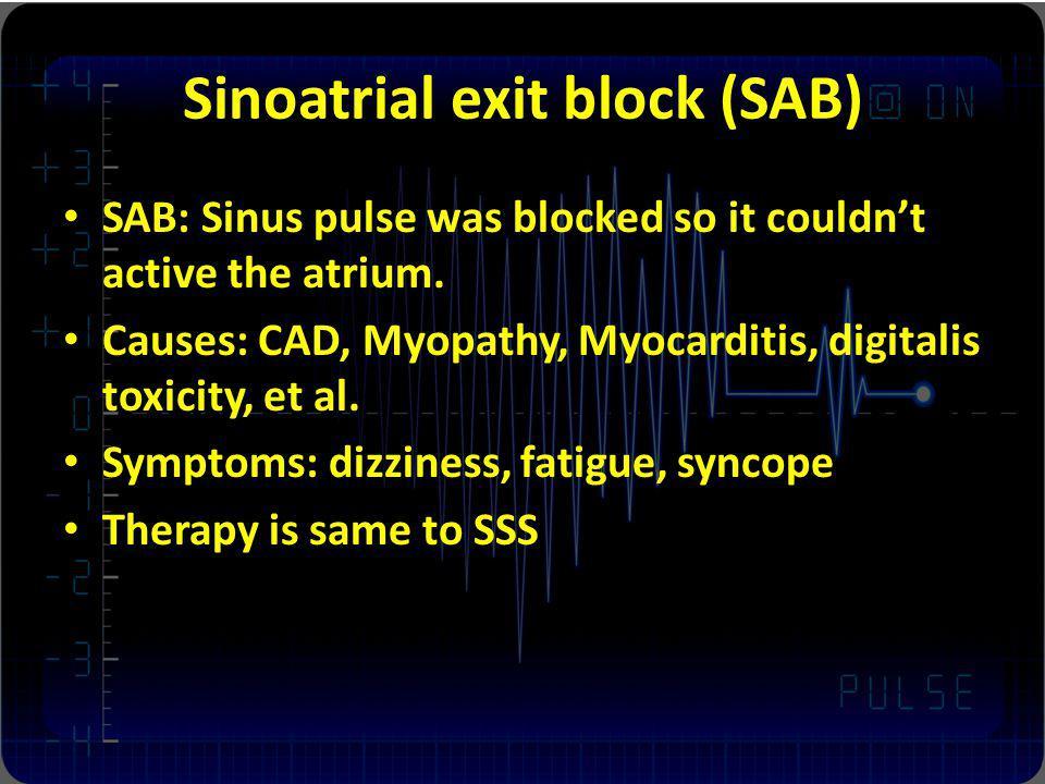 Sinoatrial exit block (SAB)