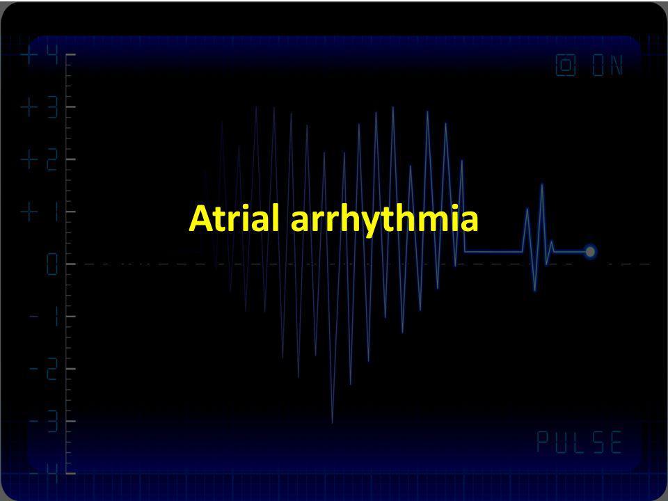Atrial arrhythmia