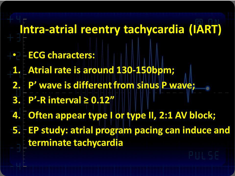 Intra-atrial reentry tachycardia (IART)