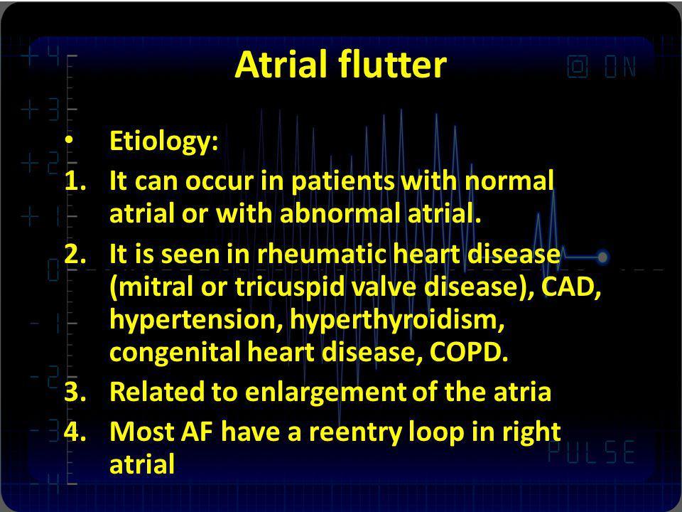 Atrial flutter Etiology: