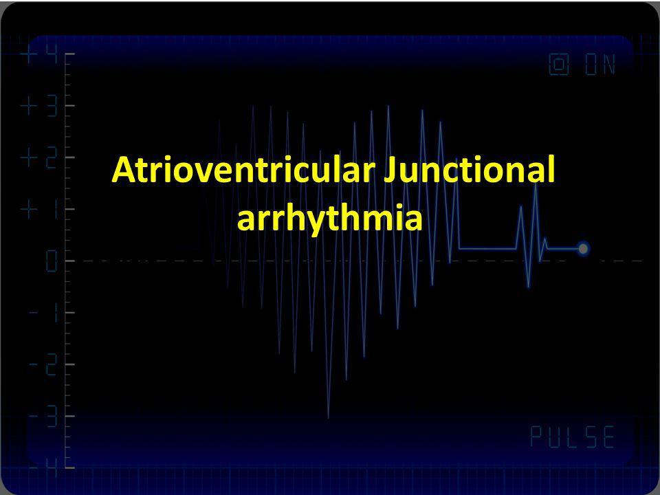 Atrioventricular Junctional arrhythmia