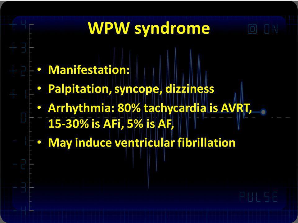 WPW syndrome Manifestation: Palpitation, syncope, dizziness