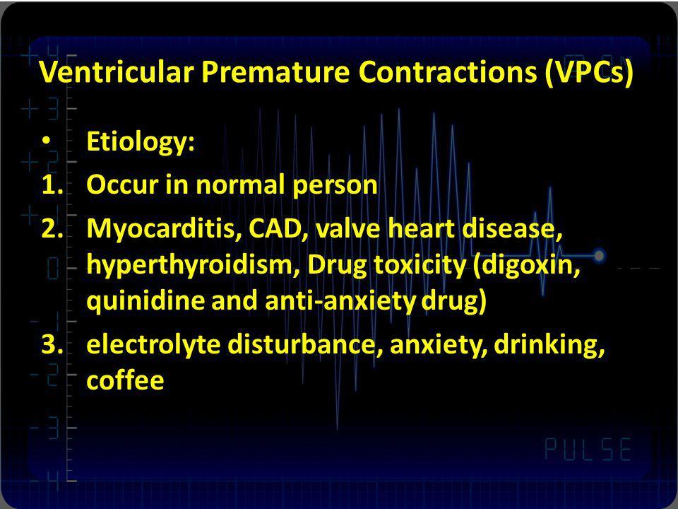 Ventricular Premature Contractions (VPCs)