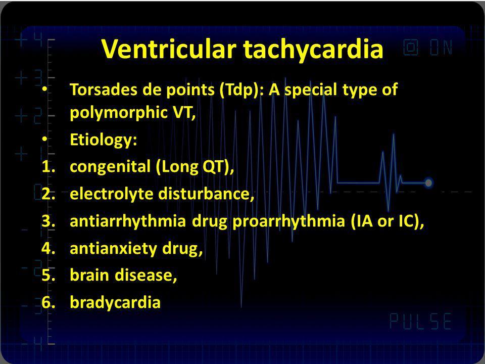Ventricular tachycardia