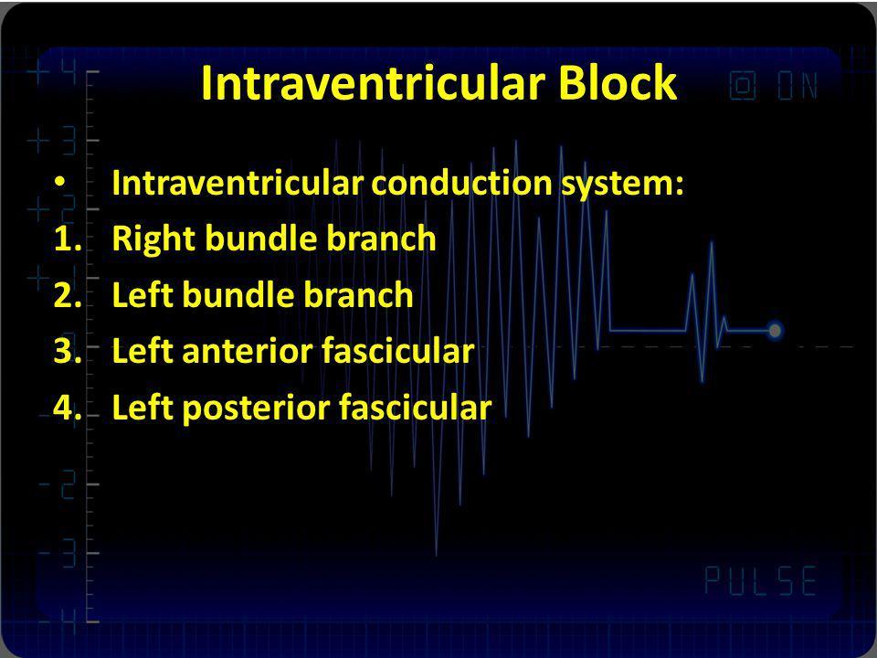 Intraventricular Block
