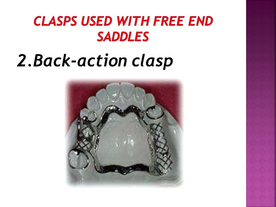 Clasps used with free end saddles