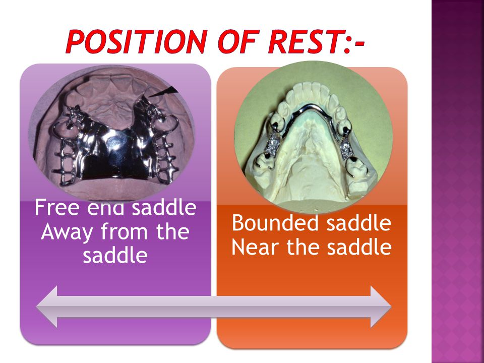 Position of rest:- Free end saddle Away from the saddle