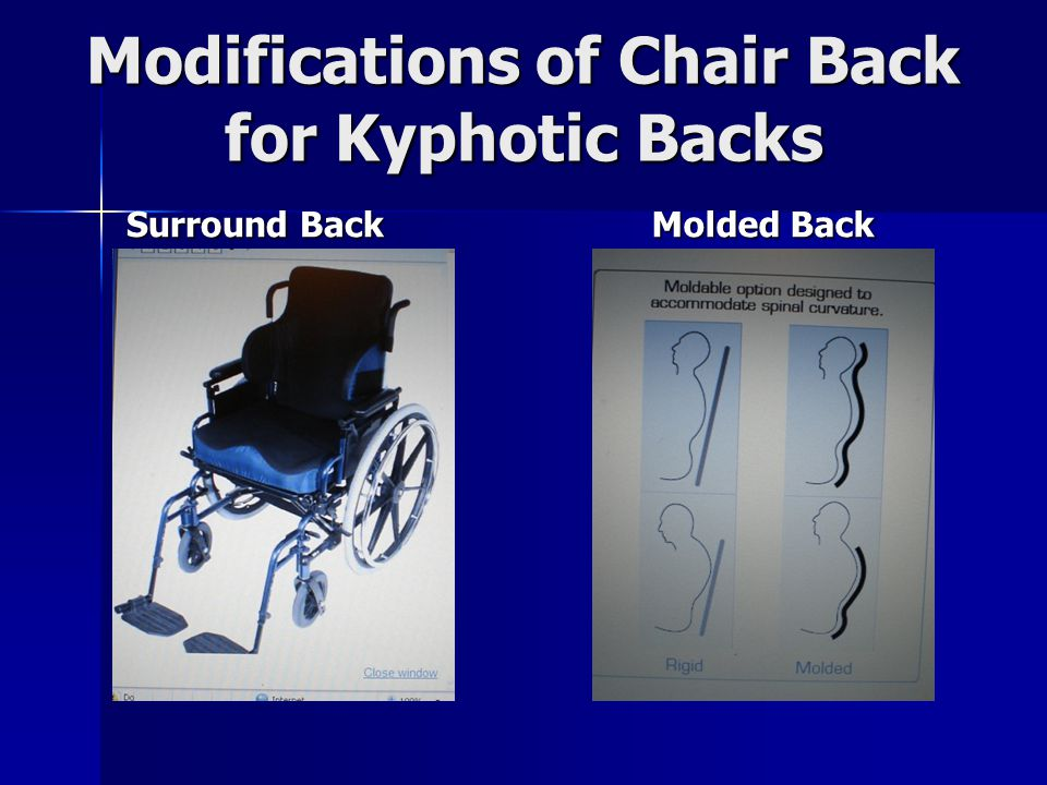 Modifications of Chair Back for Kyphotic Backs