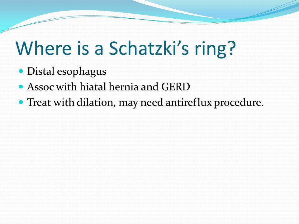 Where is a Schatzki's ring