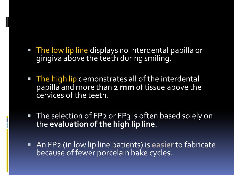 The low lip line displays no interdental papilla or gingiva above the teeth during smiling.
