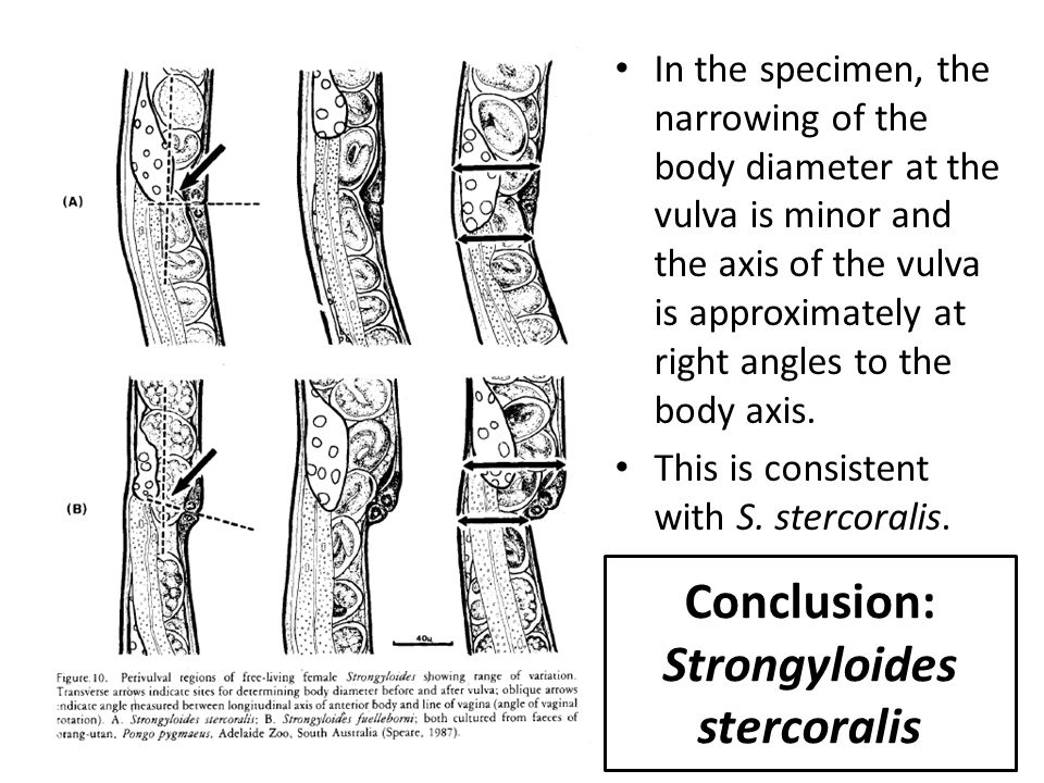 Conclusion: Strongyloides stercoralis