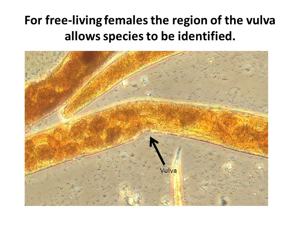 For free-living females the region of the vulva allows species to be identified.
