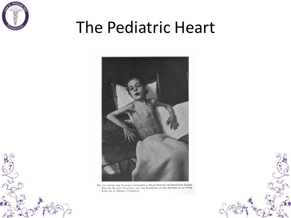 The Pediatric Heart