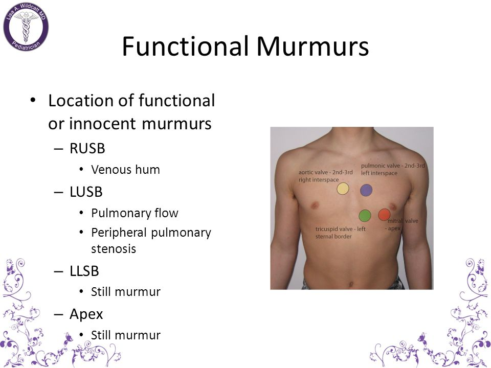 Functional Murmurs Location of functional or innocent murmurs RUSB